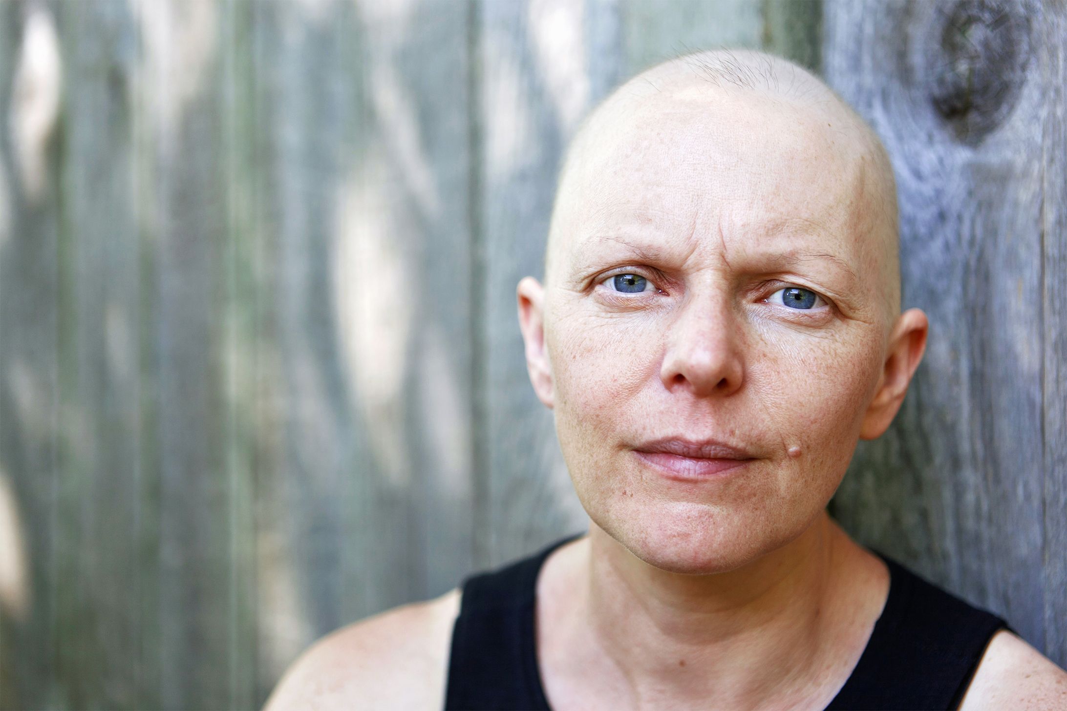 Portrait-of-a-female-cancer-patient-outside-1